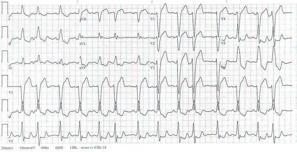 Left Bundle Branch Block (LBBB)
