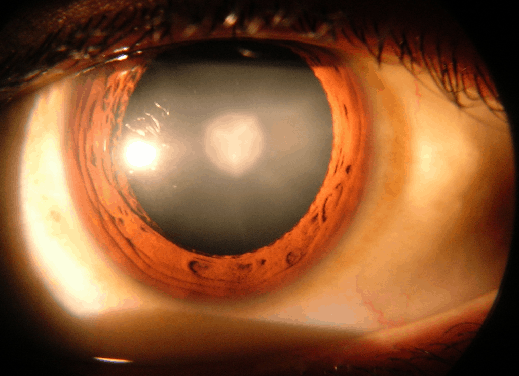 Photo of a cataract with a dilated pupil