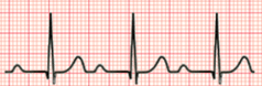 1st Degree Heart Block