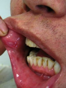 Behcet's Mouth Ulcer