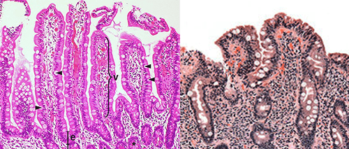 Left - normal histology of the small bowel. Right: Histology of the mucosa in Coeliac disease. Note the hypertrophy of the pits, and atrophy of the villi to create an almost flat mucosal surface, vastly reducing the surface area