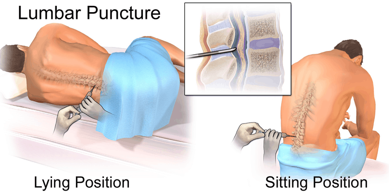 Lumbar Puncture Patient Positioning