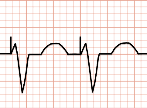 Example of ventricular pacing