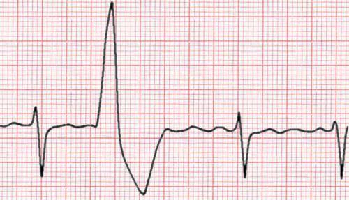 Ventricular Ectopic Beat (VEB)