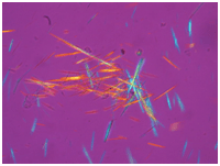 Gout Crystals on Microscopy