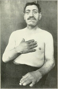 Read more about the article Acromegaly