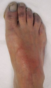 Read more about the article Acute Limb Ischaemia