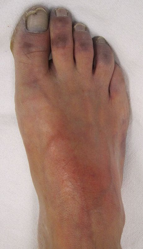 Acute Limb Ischaemia