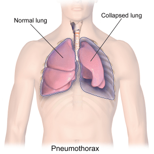 Read more about the article Pneumothorax