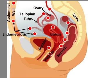 Example locations of endometriosis tissue