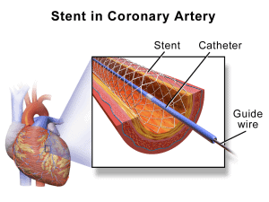 Read more about the article Angioplasty (PCI)
