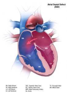 ASD – Atrial Septal Defect