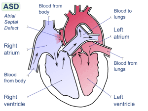 Read more about the article Congenital Heart Disease