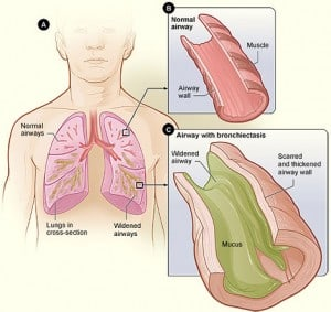 Read more about the article Bronchiectasis