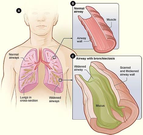 Pathology of bronchiectasis