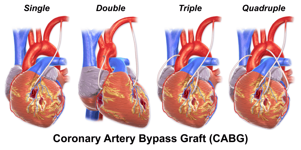 CABG - examples of different procedures for coronary artery bypass grafting