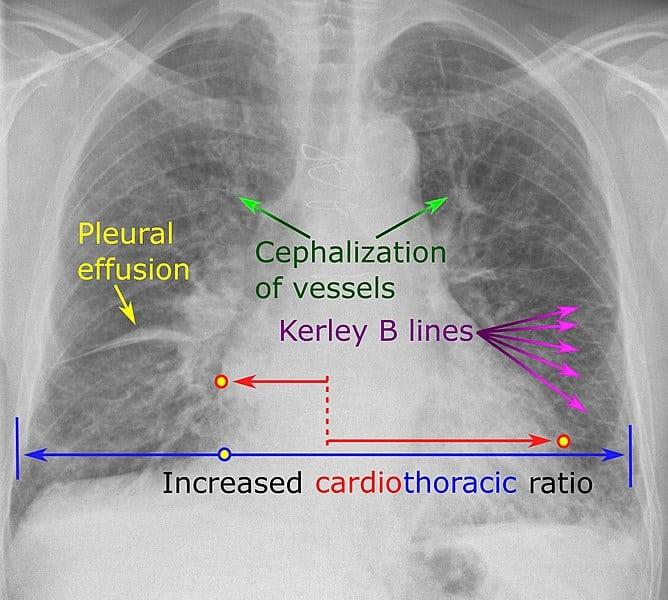 CXR Signs in Heart Failure