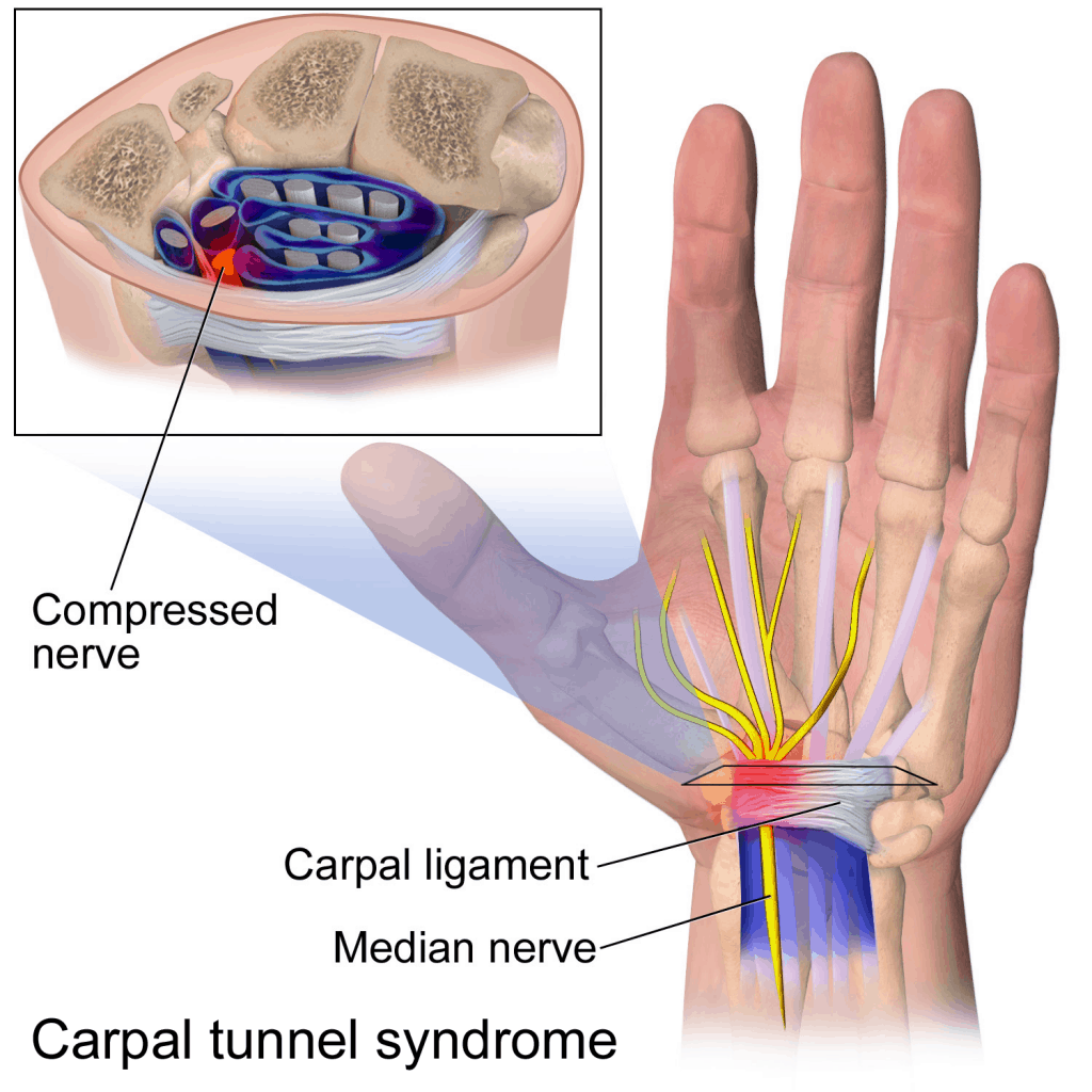 Anatomy of carpal tunnel syndrome
