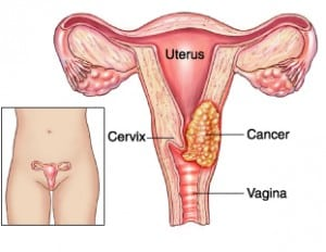 Read more about the article Cervical Cancer and CIN