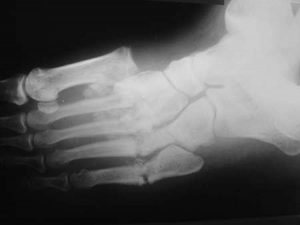 Charcot arthropathy X-ray