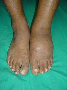 Charcot Arthopathy Presentation in left foot