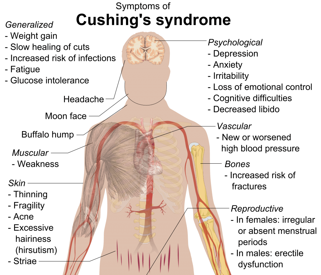 Cushing syndrome signs and symptoms