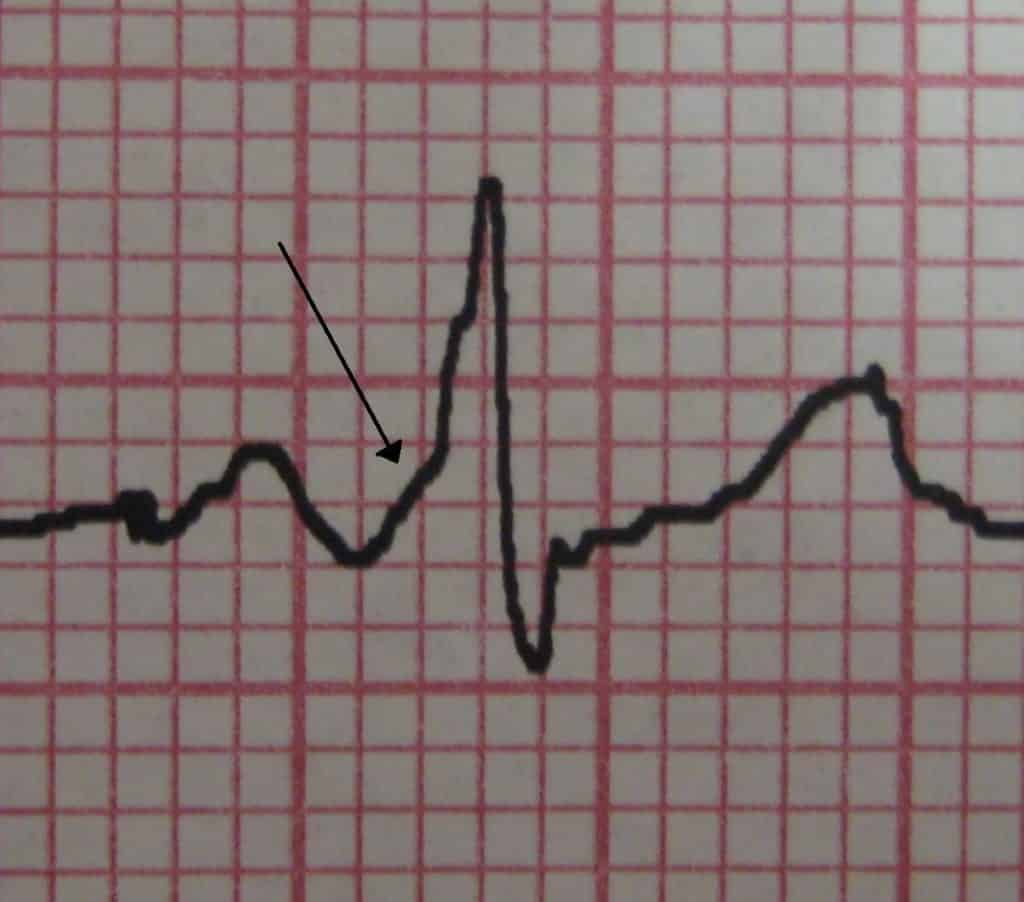 Example of a delta wave on ECG in Wolff-Parkinson-White Syndrome (WPW).