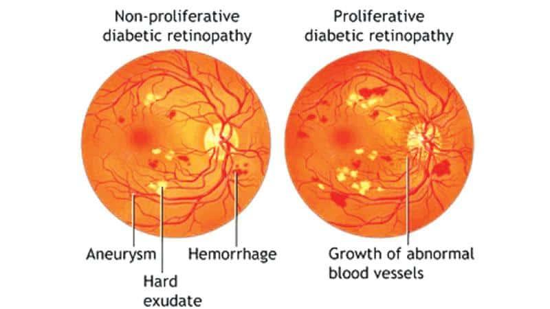 Diabetic Retinoapthy