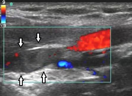 Doppler ultrasounds demonstrating DVT