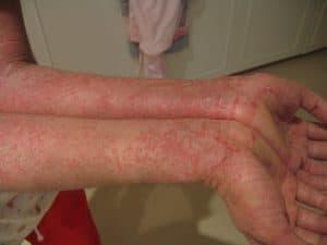 Eczema (Atopic dermatitis)