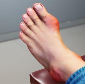 Classical gout appearance 1st MTP