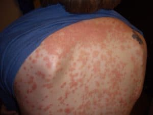 Example of guttate psoriasis. Note the small plaque size and distribution on the trunk. Guttate psoriasis can often be more resistant to treatment.