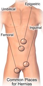 Common hernia sites