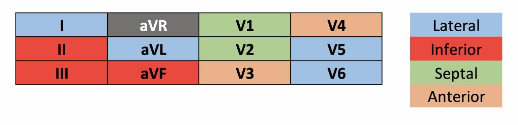 Location of MI based on ECG