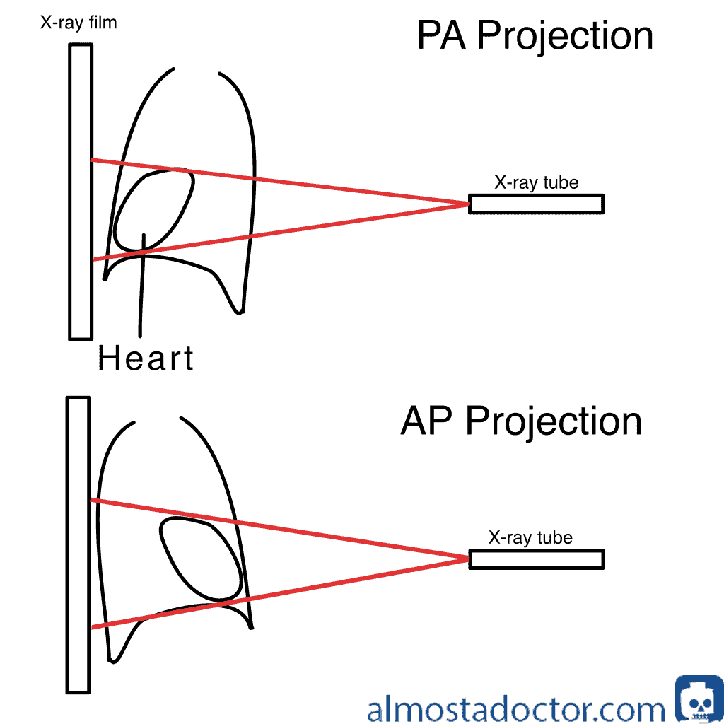 PA vs AP projection on Chest X-ray