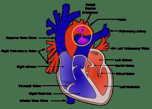 PDA – Patent Ductus Arteriosus