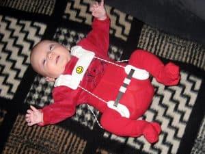 Baby wearing a Pavlik Harness