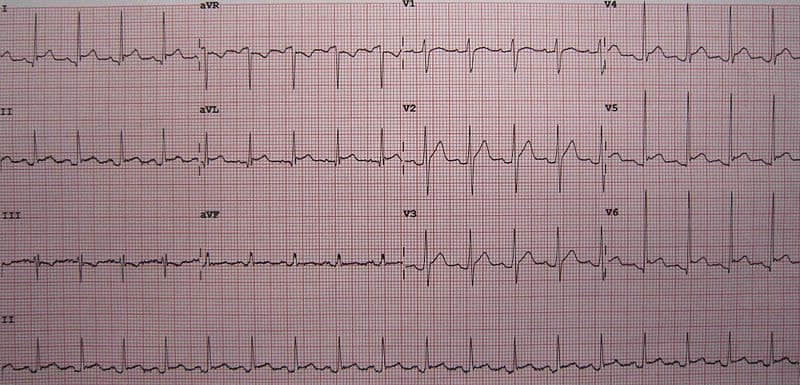 Pericarditis ECG