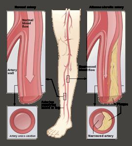 Peripheral Vascular Disease (PVD)