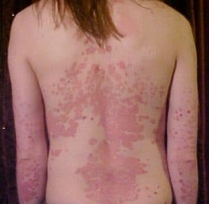Example of widespread psoriasis on a patient's back
