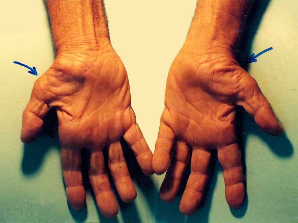 Late carpal tunnel syndrome