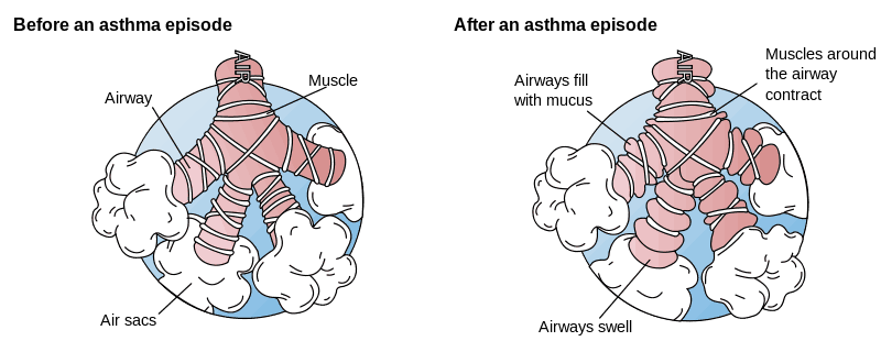 Asthma Pathology