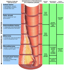Read more about the article Cardiovascular disease and atherosclerosis