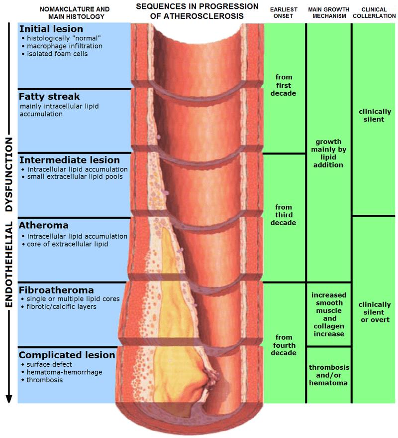 Pathology of atherosclerosis