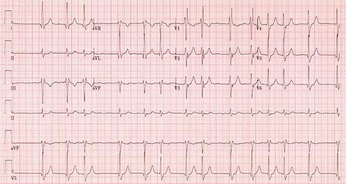 Atrial fibrillation on ECG
