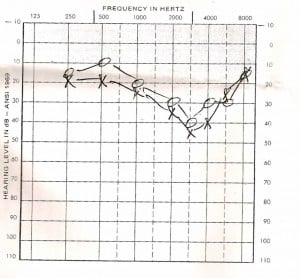 Audiology hearing test showing hearing loss