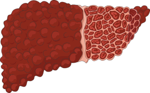 Read more about the article Clinical Consequences of Liver Disease