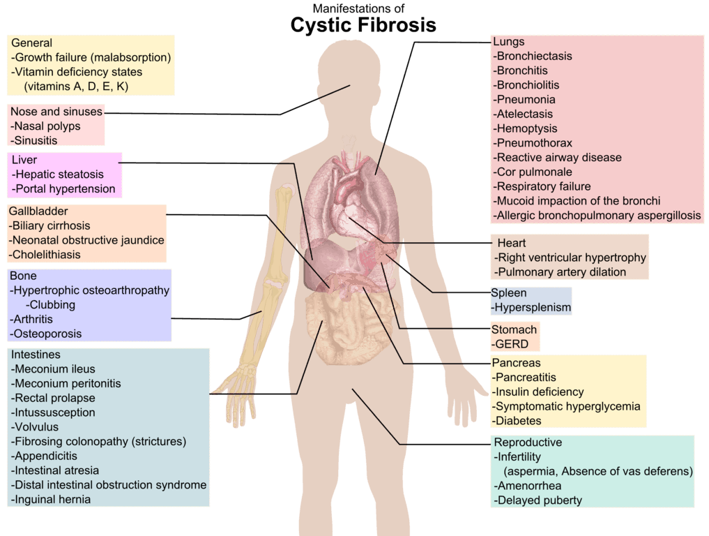 Signs and symptoms of cystic fibrosis