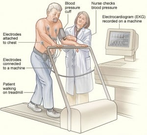 Read more about the article Exercise Tolerance Test (ETT)