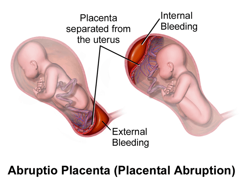 Placental Abruption - another cause of antepartum hemorrhage